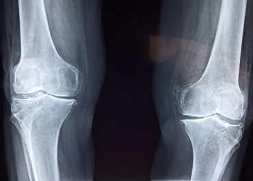 injury-knee